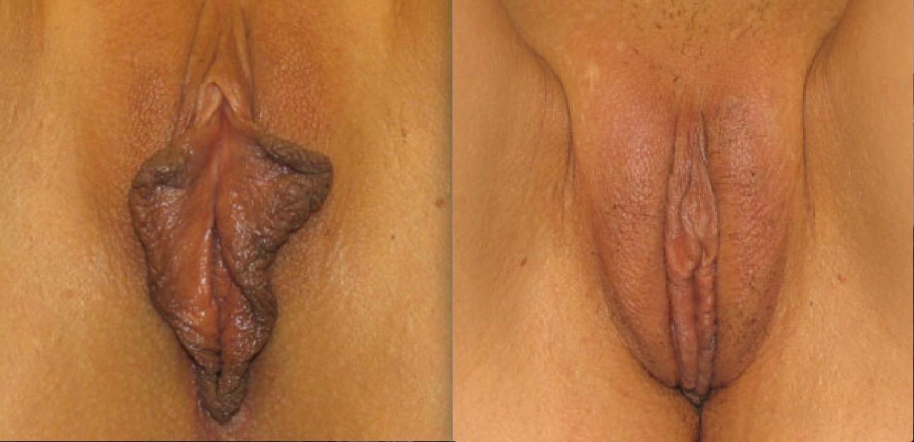 Labioplastie6/Labiaplasty6