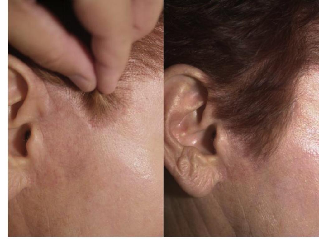 Cicatrici dupa operatie mascate de par