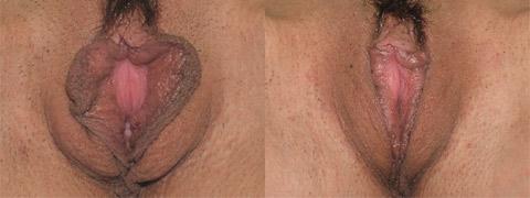 Labioplastie7/Labiaplasty7