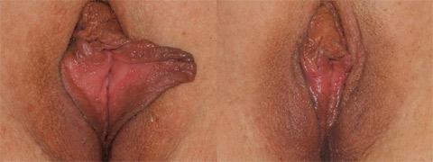 labioplasty2