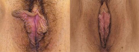 Labioplastie3/Labioplasty3