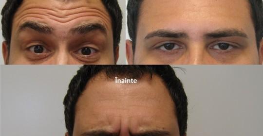 "Toxina Botulinică :BOTOX.Intinerirea feței cuBOTOX.Clinica ""ESTET&GYN"".GIROC.Timisoara"