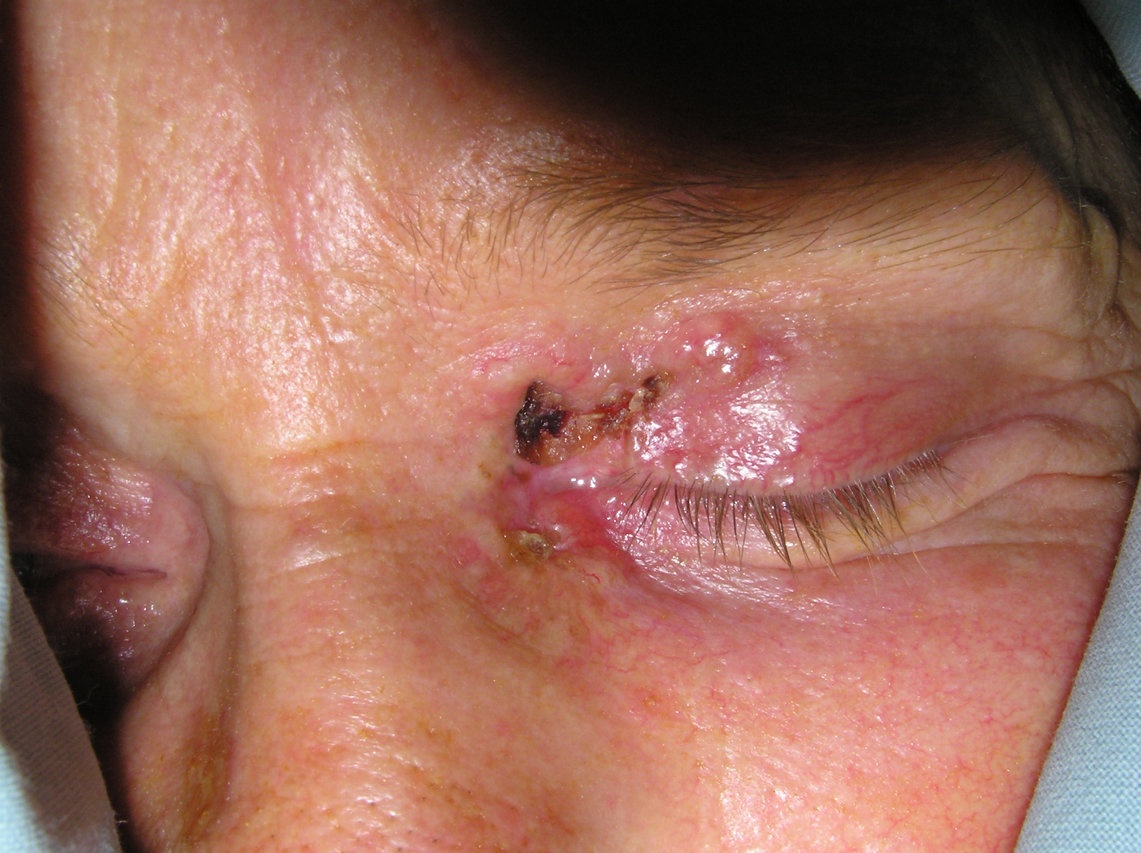 Carcinom Bazo-Celular