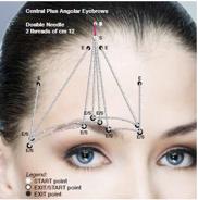 Ridicarea sprâncenelor, la  Clinica Estet&Gyn ,Clinica de Chirurgie Plastica,Chirurgie Estetica :