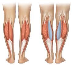 Mârire gambe/Implanturile de gambă