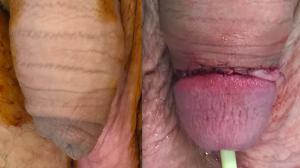Circumcizie Inainte/Dupa