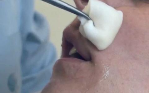 Dezinfectarea preop boca