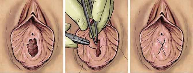 Himenoplastie sau Refacerea virginitatii