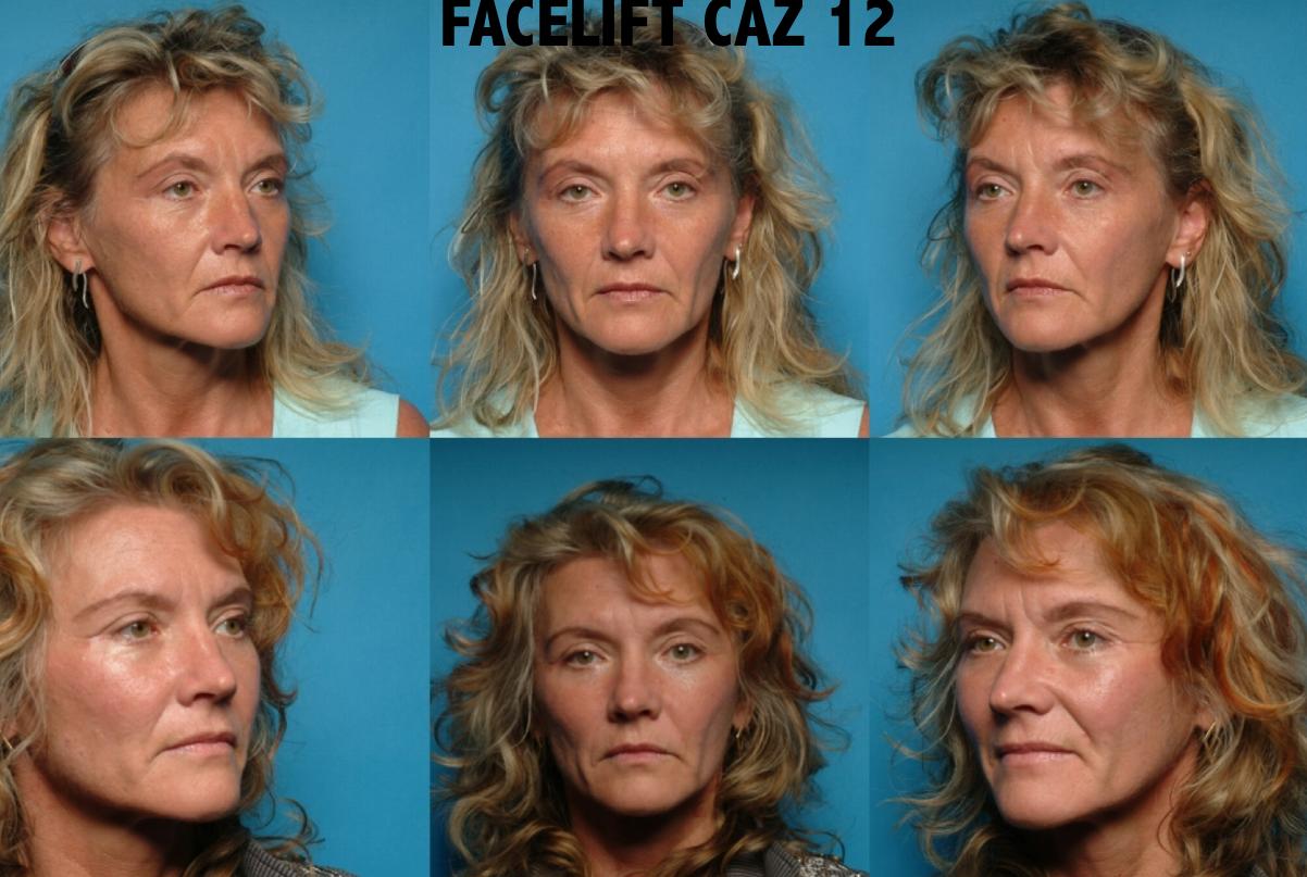 Facelift Caz 12