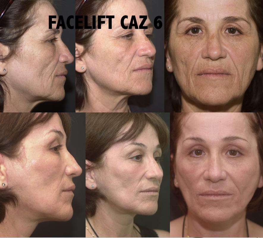 Facelift Caz 6