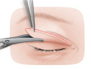 Chirurgia pleoapelor / Blefaroplastia
