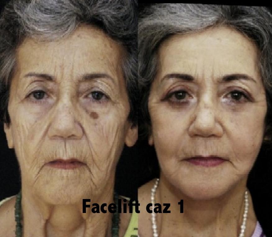 Facelift Caz 02