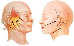Lifting cervical / Ridicarea pielii gâtului