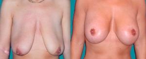 Mamopexie (Micșorare sâni)