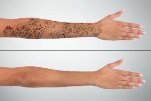 Scoatere Tatuaj Cu laser ND-Yag Inainte-După