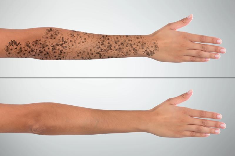 Indepartare tatuaje sau stergerea tatuajului cu laser