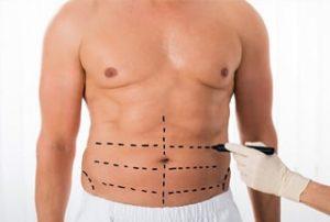 Chirurgie estetică bărbați Timişoara