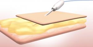 "Tehnica de liposuctie in Clinica "" ESTET & Gyn """