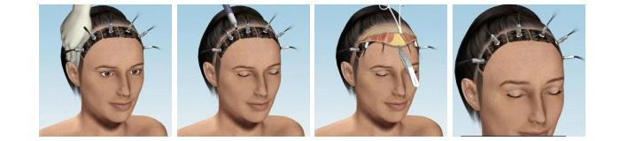 Procedură Lifting frontal