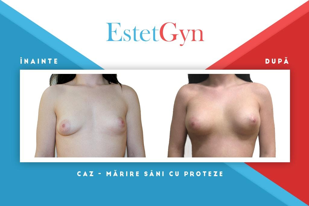 sâni se micșorează după pierderea în greutate