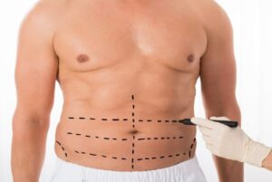 Chirurgie estetică bărbați