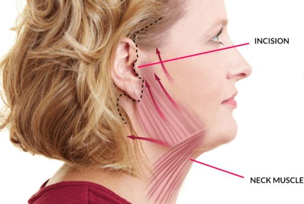 Chirurgia gâtului