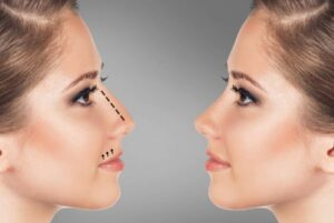 Chirurgia nasului / Rinoplastia