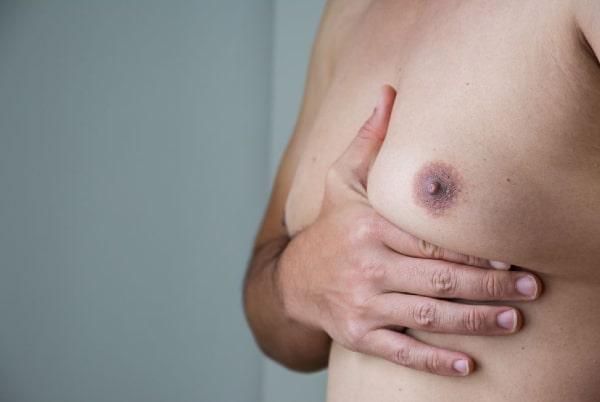Ginecomastie, micșorare sâni bărbați