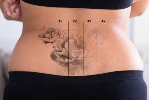 Îndepărtare tatuaje