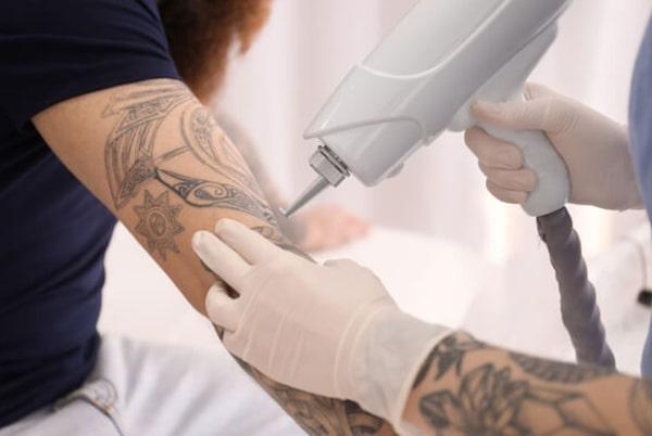 Îndepărtare tatuaje prin laser