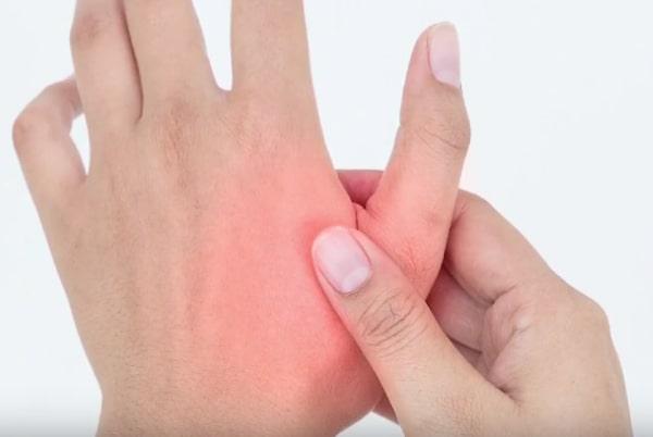 Leziuni vasculare