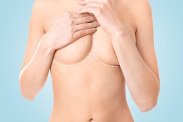 Liposculptura sâni