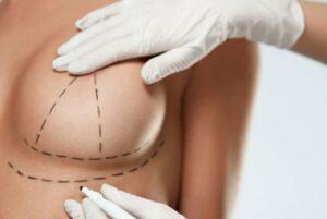 Mamopexie - Ridicarea sânilor cu proteze