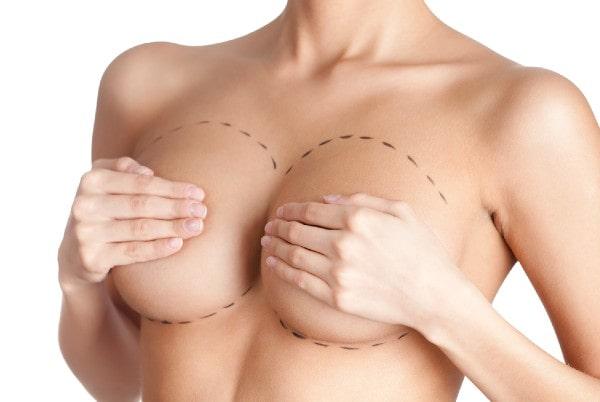 Mărirea sânilor cu proteze